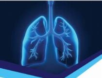 Indústrias se unem para adquirir respiradores para a saúde de Minas